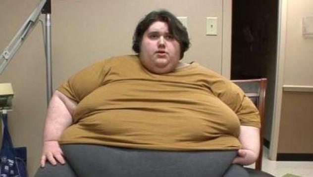 Най-дебелият тинейджър на света