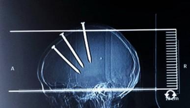 Мъж оцеля след три пирона в черепа (18+)