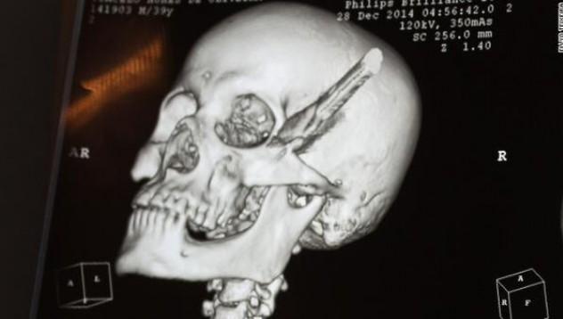 Таксиметров шофьор прекара няколко часа със забит нож