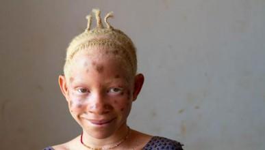 Африканци преследват албиноси