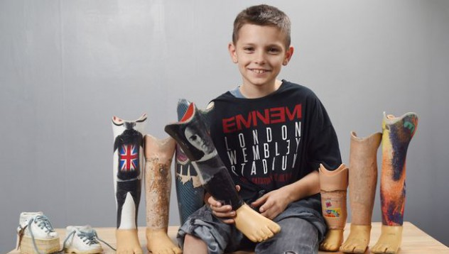 Момче постави лика на Еминем върху протезата си