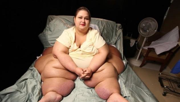 466-килограмова жена успя да отслабне драстично
