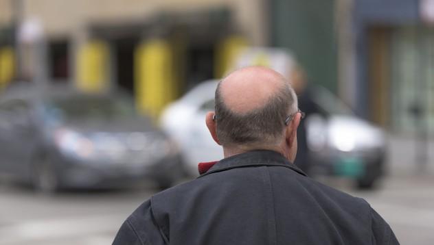 Ако се нуждаете от трансплантация на коса - това е за вас