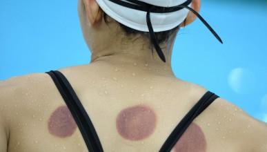 Защо олимпийските състезатели имат петна по тялото