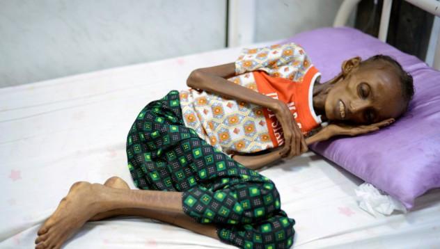 Геноцидът в Йемен може да бъде илюстриран