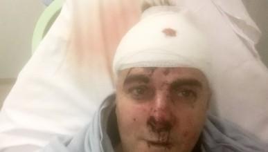 Майстор по Крав Мага прогони 5-ма нападатели с мачетета
