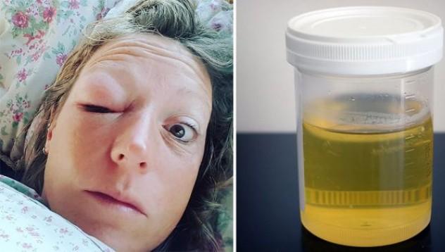 Жена консумира по 2 чаши урина на ден