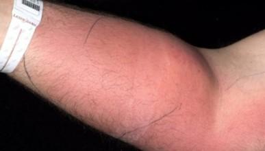 Мъж инжектира семенната си течност за лечение на болки в кръста